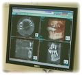 ファインキューブ 3D-CTスキャナー